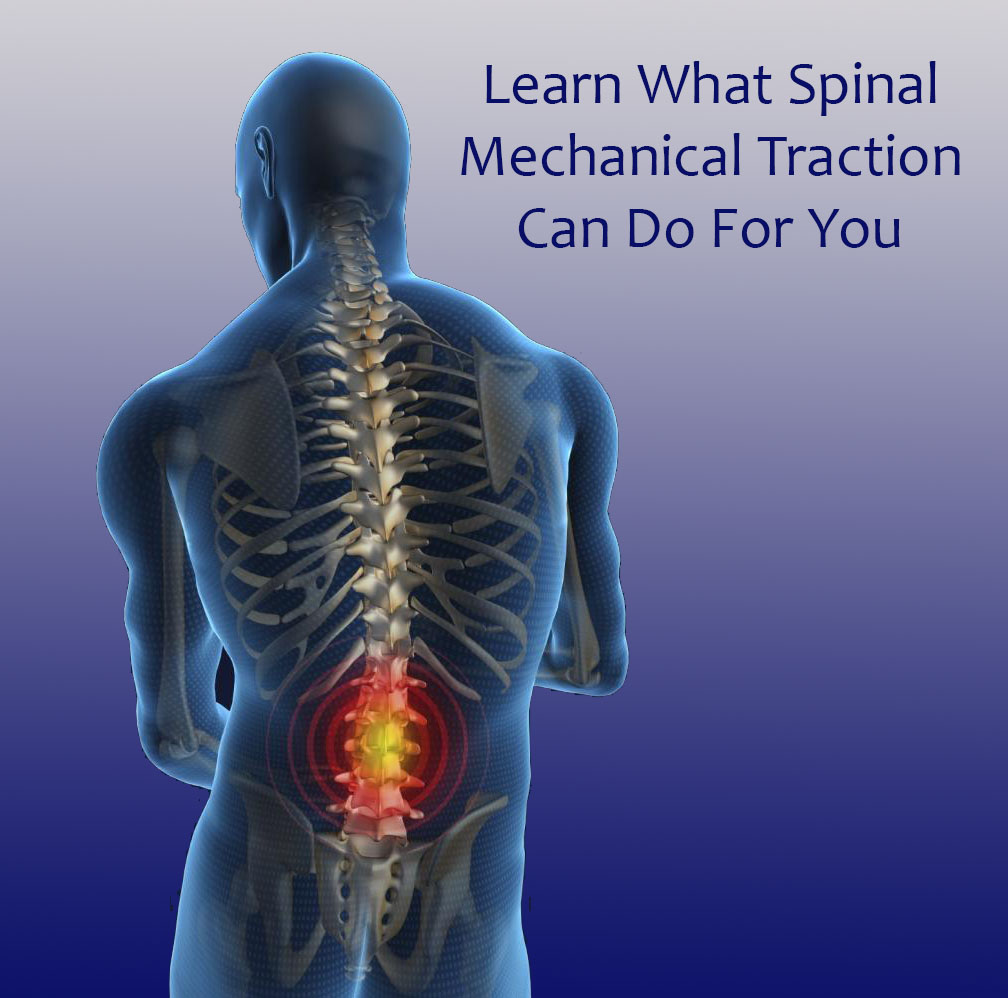 Back to Health Chiropractic Traction